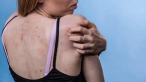 Pickel und Hautunreinheiten in der Schwangerschaft